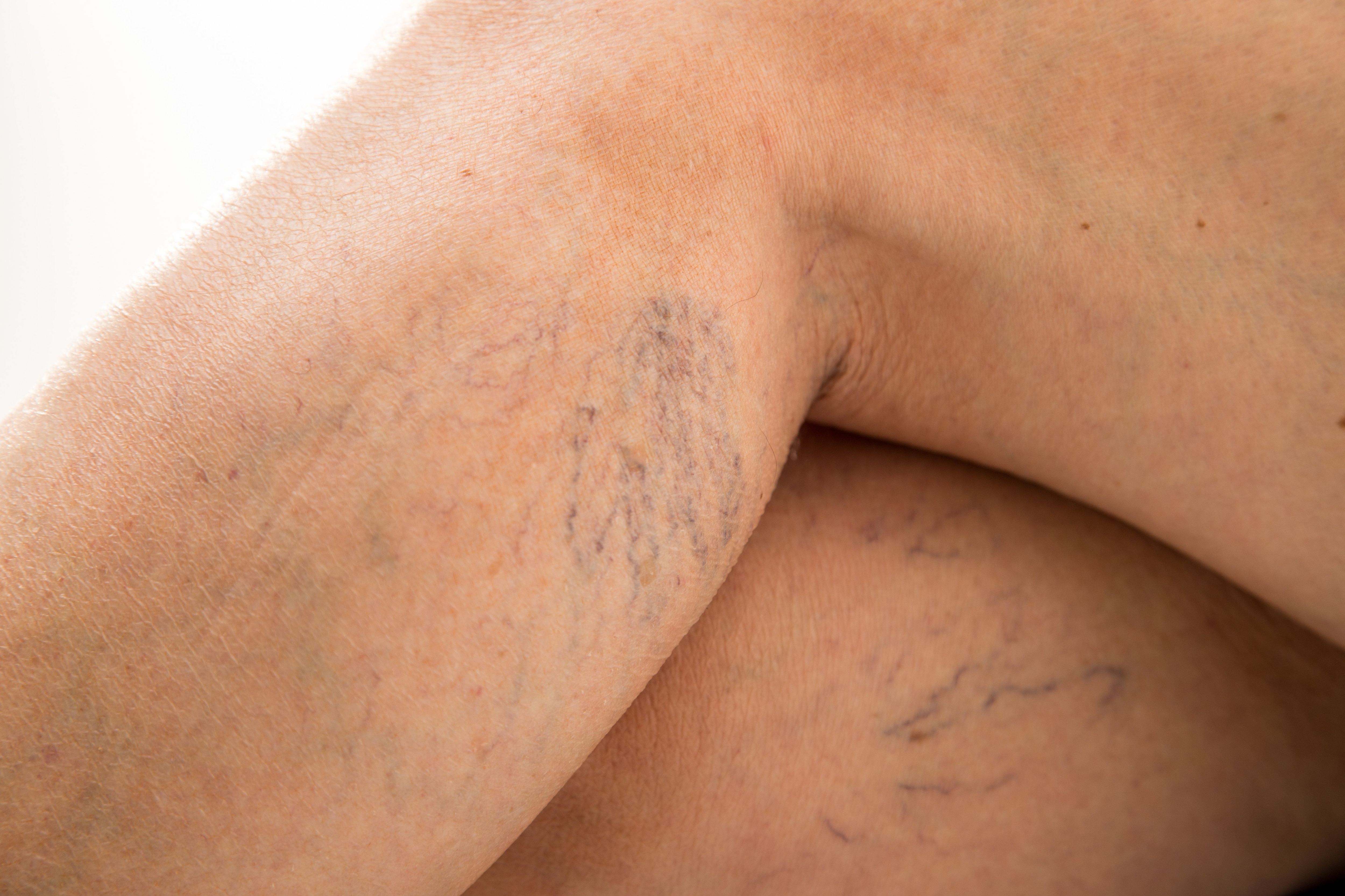 aa07e72f6 Do you have varicose veins  People have treated this somewhat unsightly  problem for a long time simply for cosmetic reasons. But varicose veins can  cause ...